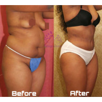 coolsculpting-fat-freezing-cryolipolysis-waist-snatching-thigh-lift-small-3