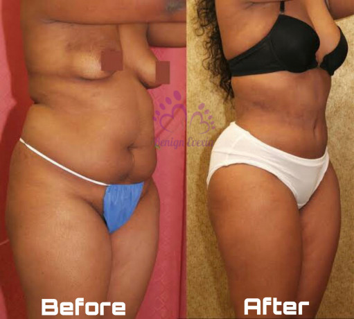 coolsculpting-fat-freezing-cryolipolysis-waist-snatching-thigh-lift-big-3