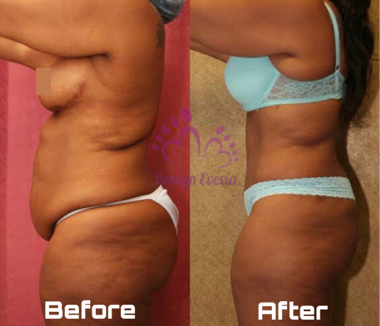 coolsculpting-fat-freezing-cryolipolysis-waist-snatching-thigh-lift-big-0