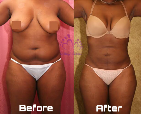 coolsculpting-fat-freezing-cryolipolysis-waist-snatching-thigh-lift-big-2
